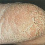 【かかとの水虫の画像】角質が厚く硬く「ひび割れ・ガサガサ」の症状